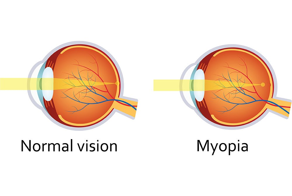 Diagram of Myopia