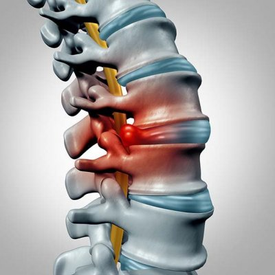 illustration of a herniated disc
