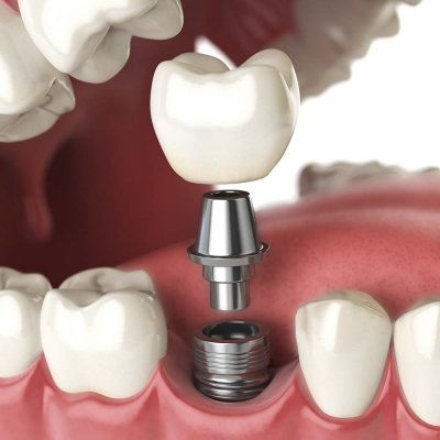 Tooth screwing into socket in mouth
