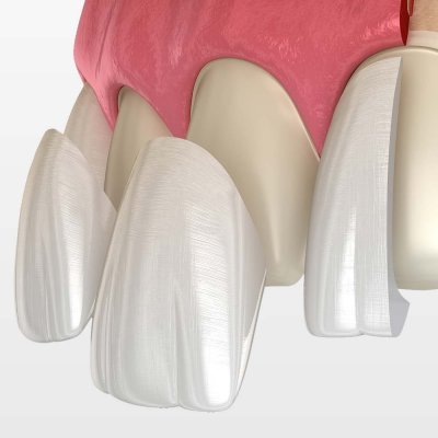 Clean teeth covers being placed over existing teeth