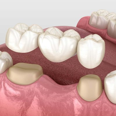 Diagram of gums with a missing tooth