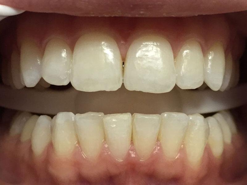 Yellow gums and teeth in mouth