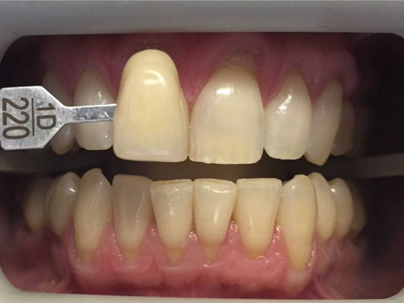 Yellow teeth in gums