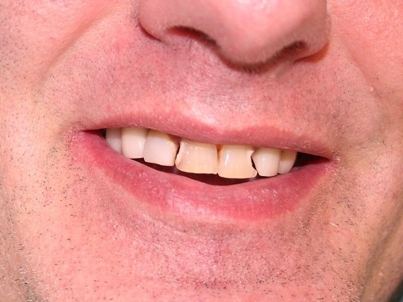 Man with chipped teeth