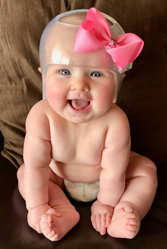 Baby girl wearing a head shaping helmet