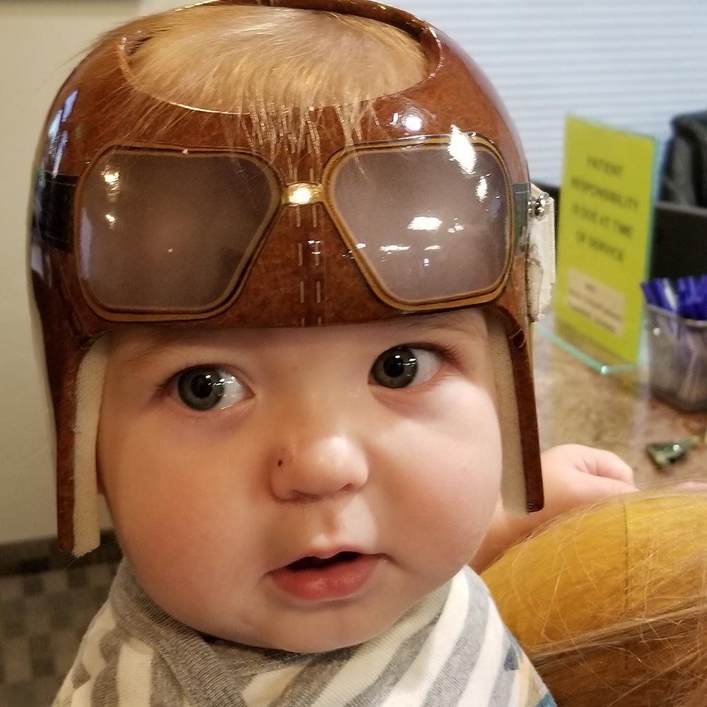 Baby wearing a head shaping helmet with goggles