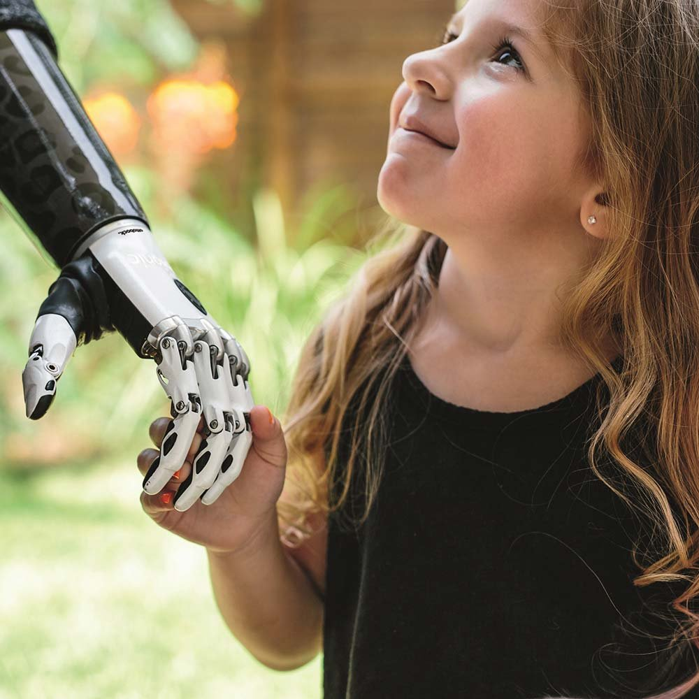 Girl holding a prosthetic hand