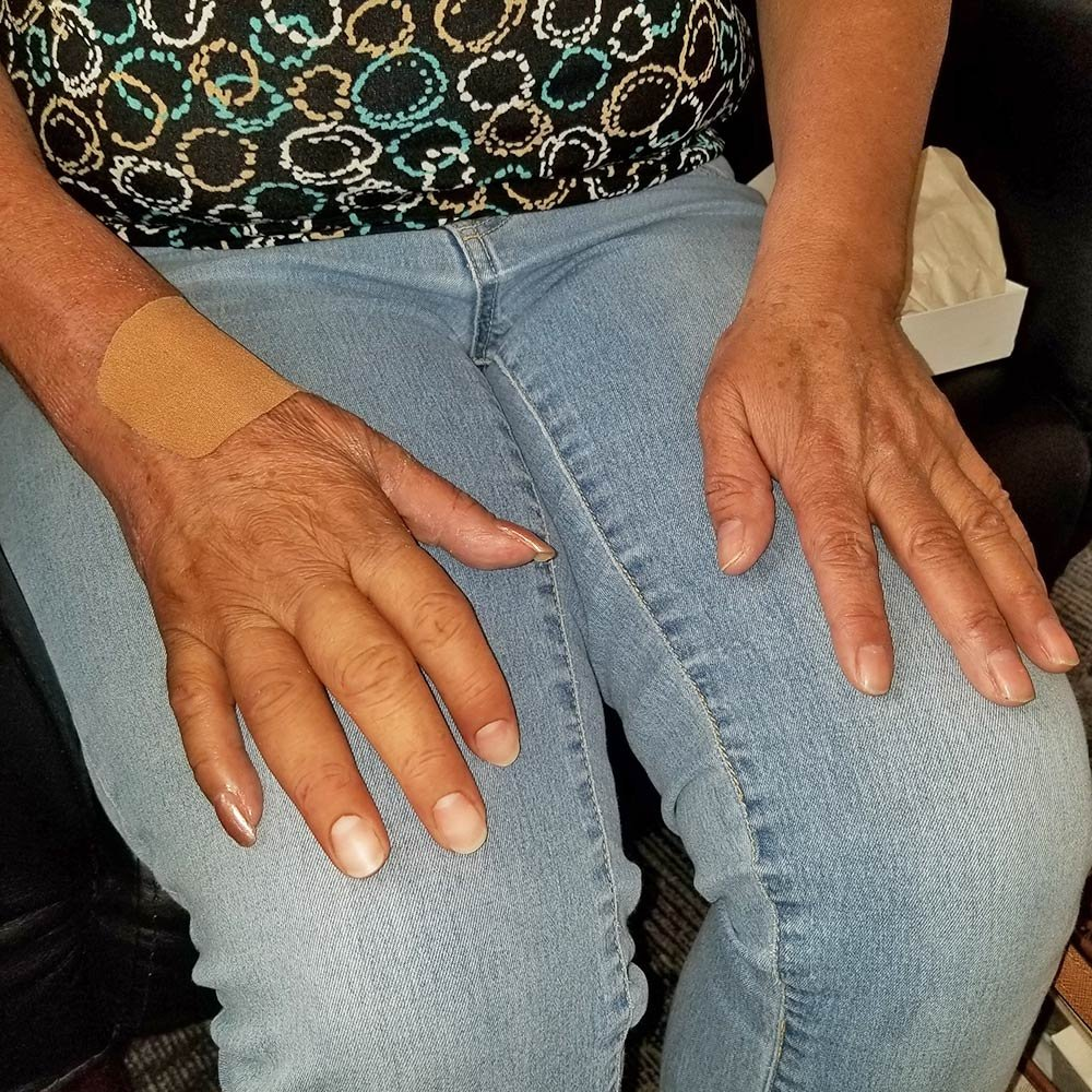 Patient with missing fingers with prosthetics