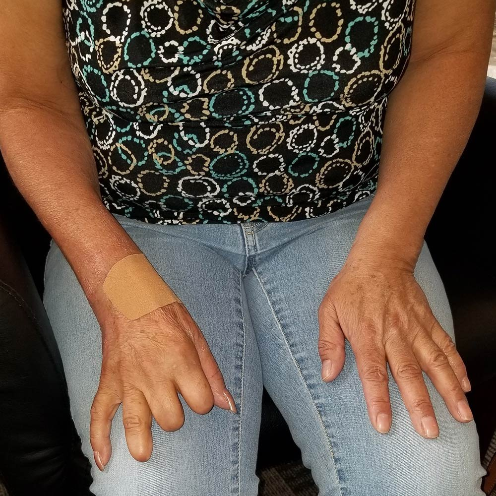 Patient missing fingers before picture