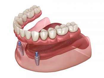 a rendering of dentures held in place by implants