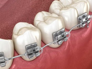 rendering of silver braces on teeth